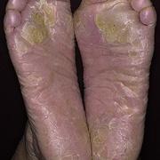 Eczema Tyloticum