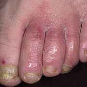 Weeping Eczema on the feet