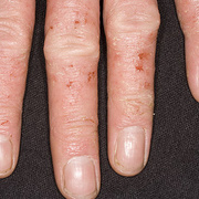 Microbial Eczema on Hands