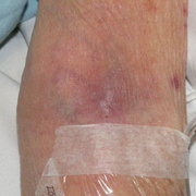 Phlebitis Early Stages