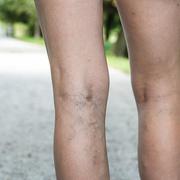 Phlebitis Foot