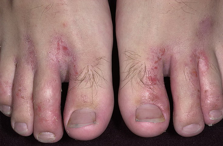 0722be30f Shoe Contact Dermatitis Pictures – 25 Photos   Images   illnessee.com