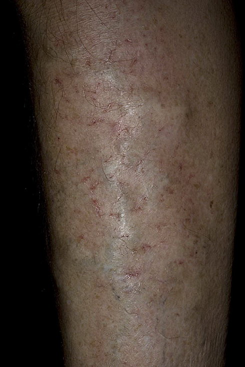 Venous Eczema On Legs Pictures 174 Photos Amp Images