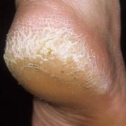 Hyperkeratosis Foot