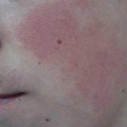 Hyperkeratosis on Face