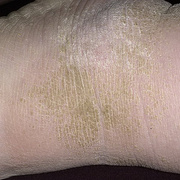 Hyperkeratosis Skin