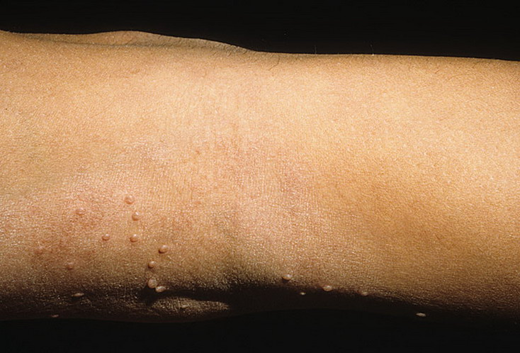 Molluscum Contagiosum In Adults Pictures  121 Photos -1747
