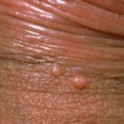 Molluscum Contagiosum on Penis