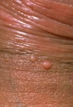 Molluscum contagiosum causes, transmission, treatment prevention