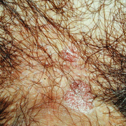 Bowenoid Papulosis in Men