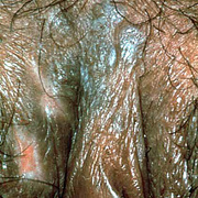 Bowenoid Papulosis in Women