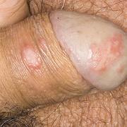 Genital Herpes in Men