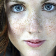 Freckles on Face