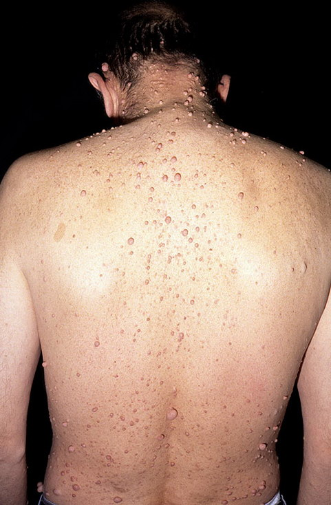 Adults with Neurofibromatosis Pictures - 59 Photos ...