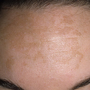 Melasma on Face