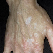 Vitiligo in White Person