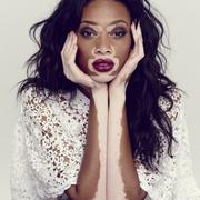 Vitiligo Women