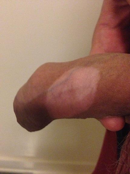 vitiligo de către penis)