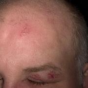 Herpes on Head