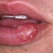 Herpes on Lip