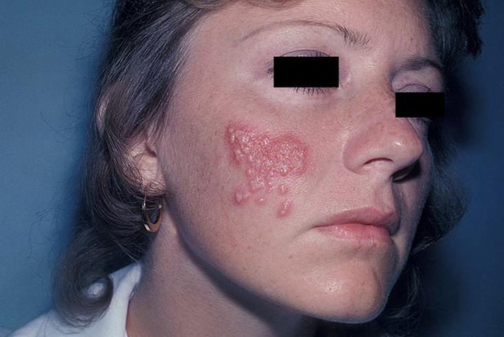 Odos grybelis herpis