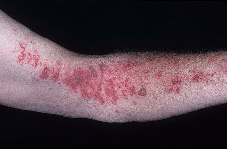 herpes on hands pictures � 48 photos amp images illnesseecom