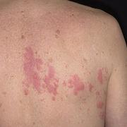 Herpes on Back