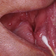 Herpes in Mouth