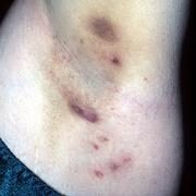 Axillary Hidradenitis