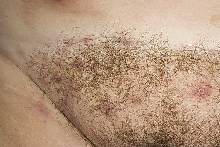 Hidradenitis Groin Pictures 21 Photos Amp Images