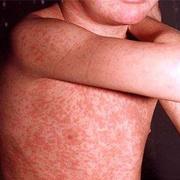 German Measles in Adults