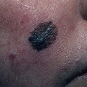 Melanoma on Face