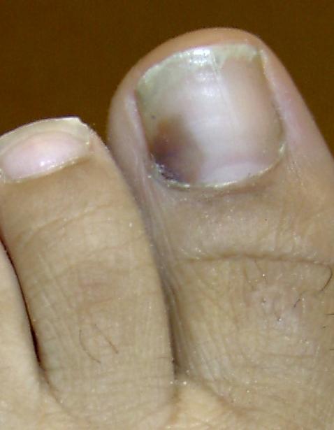 Меланома под ногтем большого пальца ноги