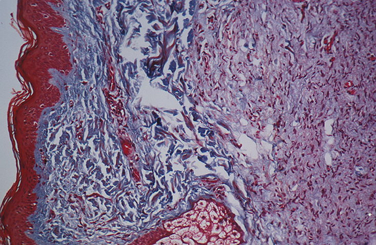 Реферат генные болезни нейрофиброматоз